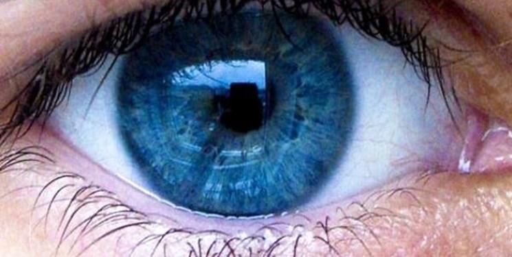 بازسازی کاسه چشم با محصولات دانش بنیان انجام شد