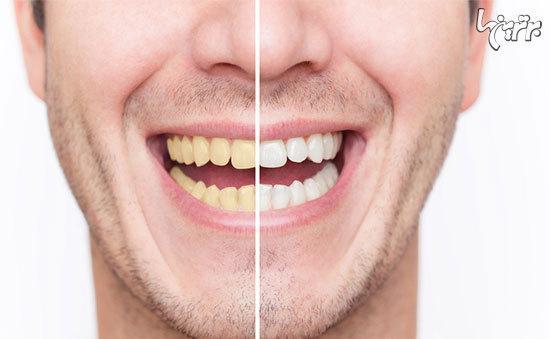 سفیدکردن دندان؛ از بلیچینگ تا لمینت