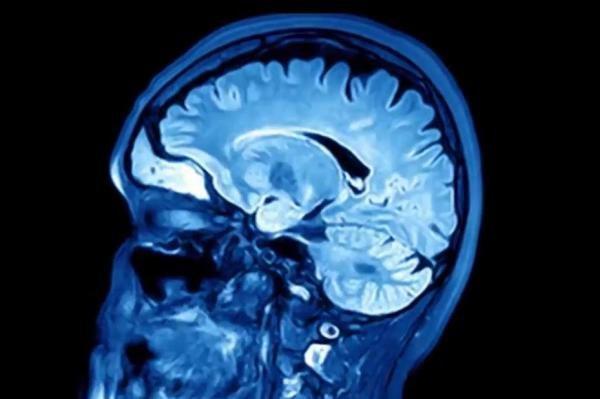 سکته خاموش شایع ترین خطر پس از جراحی در میانسالان