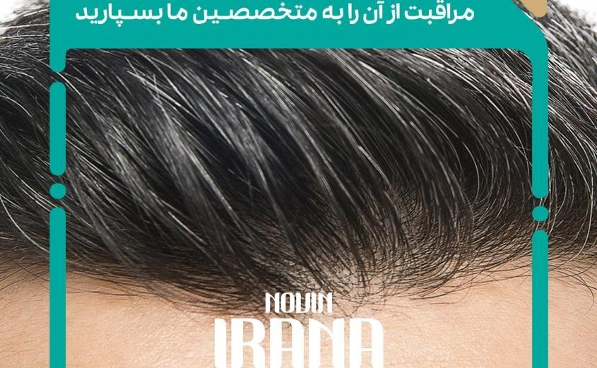 کاشت مو و جراحی لیپوساکشن با کلینیک نوین ایرانا
